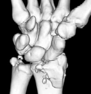 wrist-fx-2-293x300